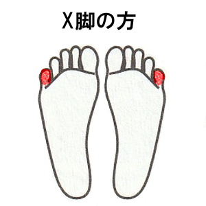 X脚の方:足の外側を平行にして、小指側に重心をかける